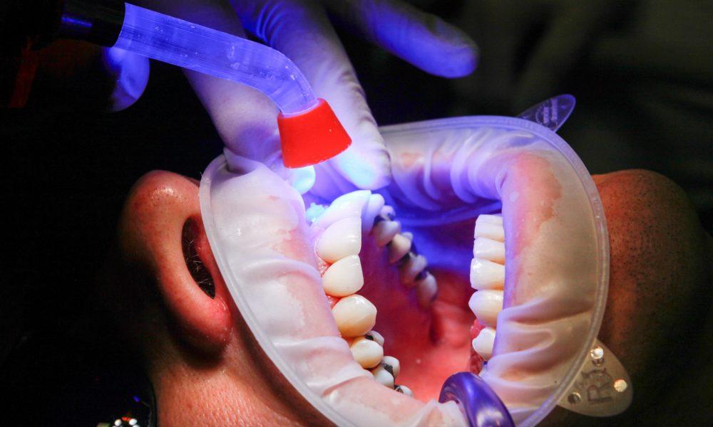 Złe podejście odżywiania się to większe deficyty w zębach oraz także ich brak